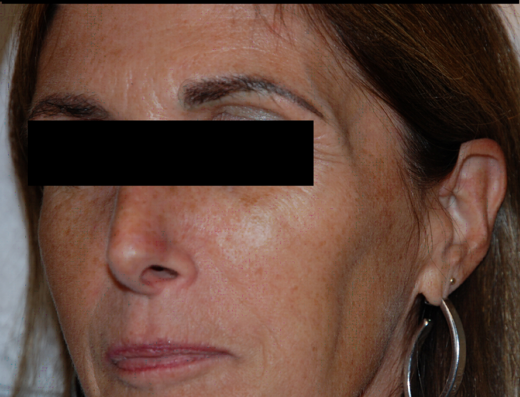 sculptra_before