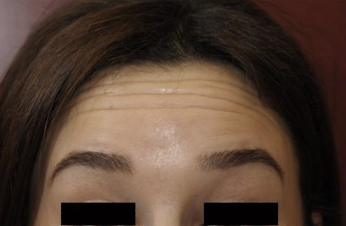 Botox before treatment