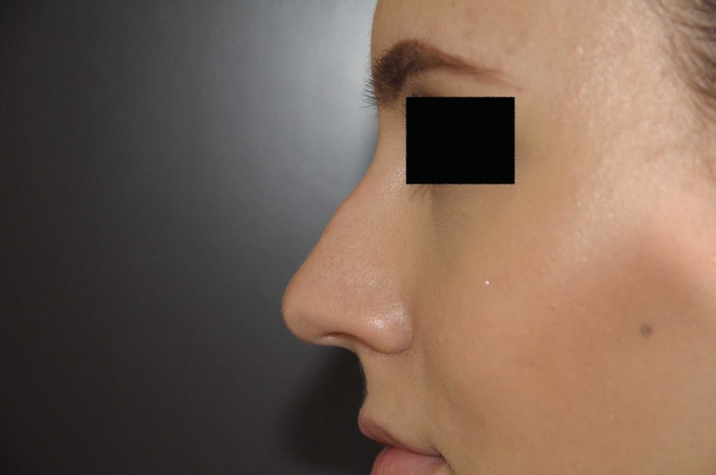 neus voorfoto